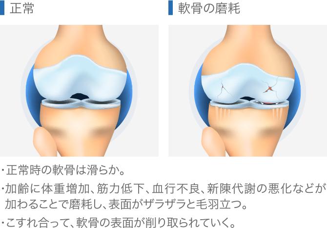 膝関節症の軟骨