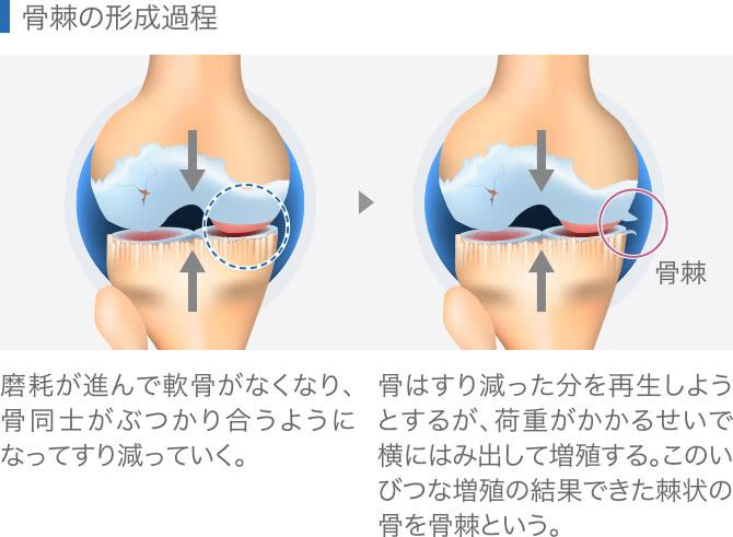 骨棘の形成過程