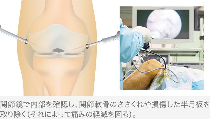 関節内視鏡下手術