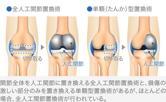 人工関節置換術