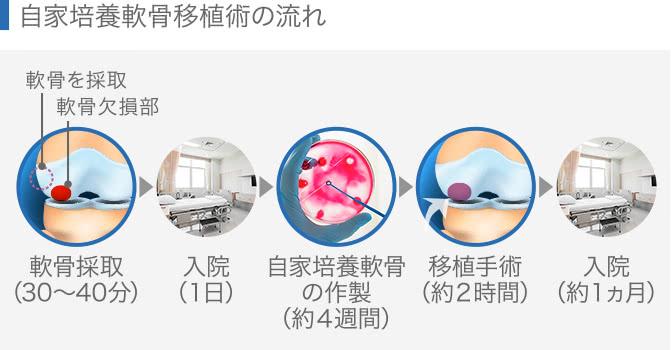自家培養軟骨移植術の流れ