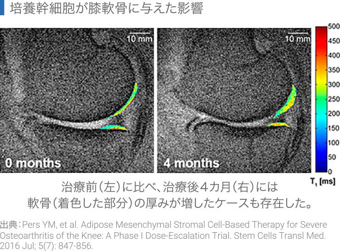 培養幹細胞が膝軟骨に与えた影響