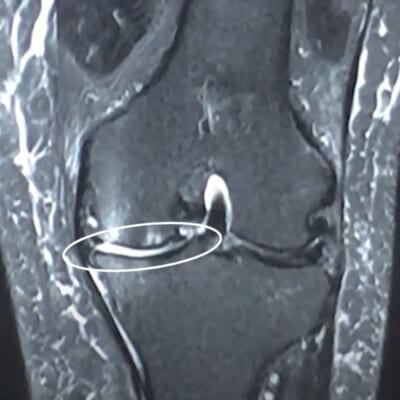 膝MRI画像(70代/変形性膝関節症)